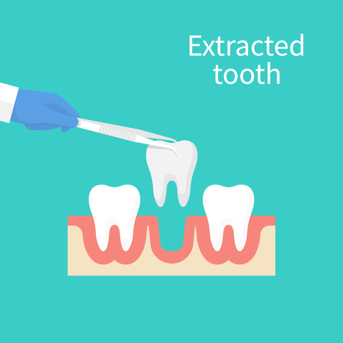 Shady Spring Dentist Tooth Extractions Drs Clay Hiener Wills Douglas